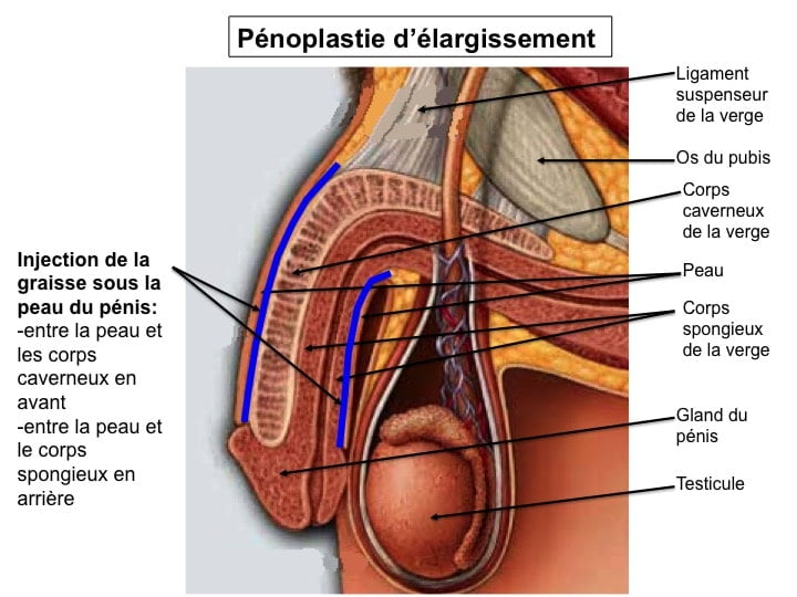 chirurgie taille penis